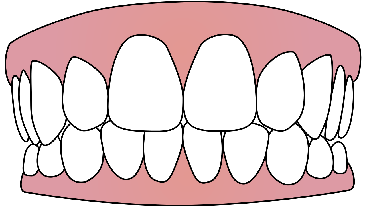 teeth, file tooth icon svg wikimedia commons #25707