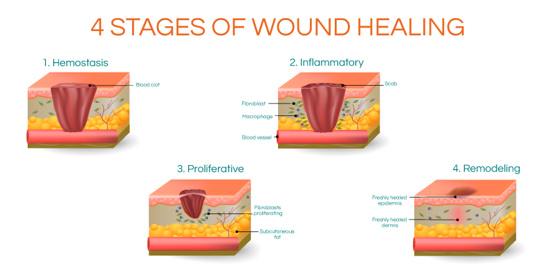 can exercise speed wound healing newgel for scars #30189